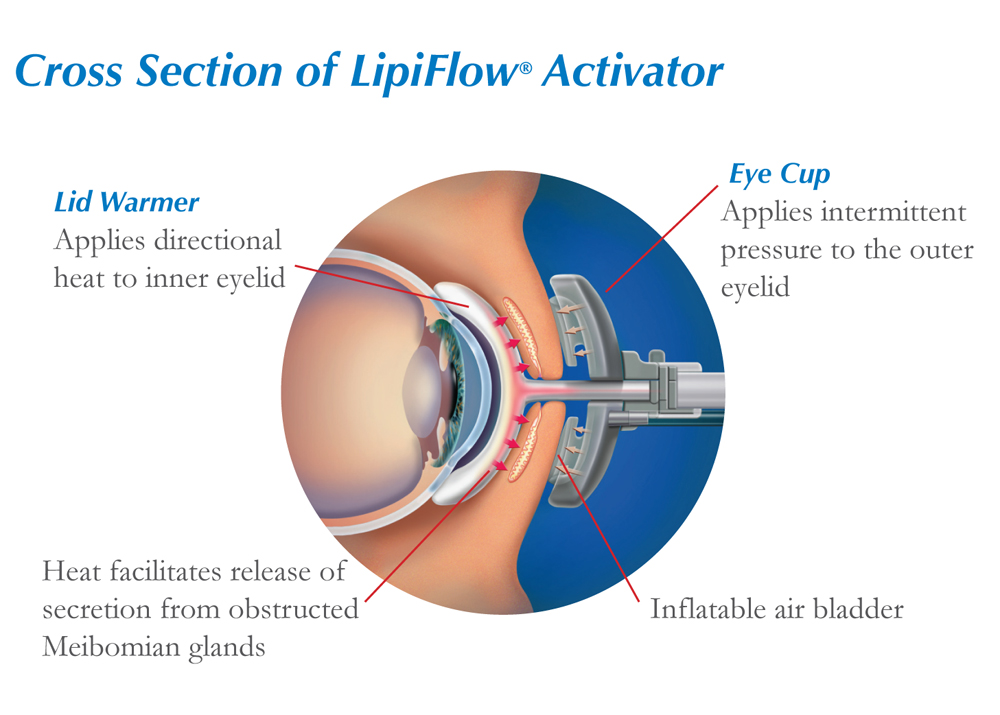 Cross Section of LipiFlow Activator