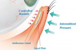 Meibomian Gland Detail