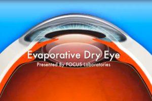 focus labs evaporative dry eye
